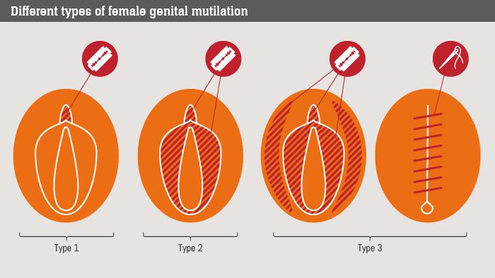 Женское обрезание секс